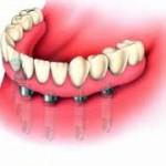 Prothese sur implant01
