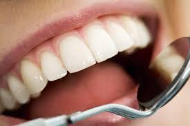dentisterie-esthétique01